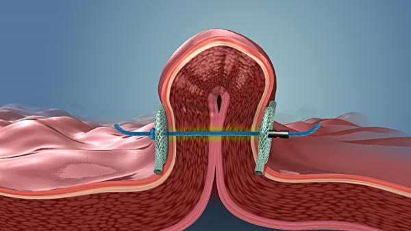 Metodo POSE reduccion estomago via endoscopia - blog de iglobalmed doctor miquel rull